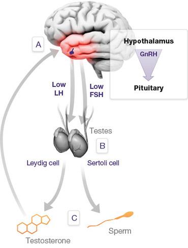 secondary-hypogonadism