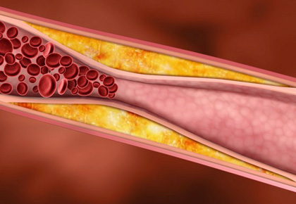 subsclinical-atherosclerosis